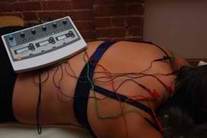 Electroacupuncture