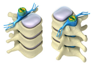 Spinal Vertebra and Nerves Exiting Spinal Chord
