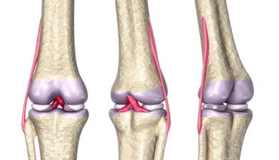 peroneal knee