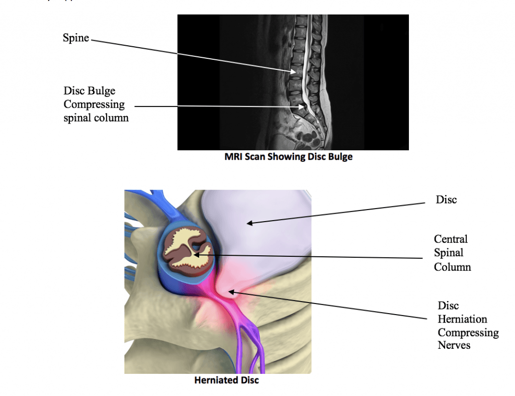 physiotherapy spinal disk bulge