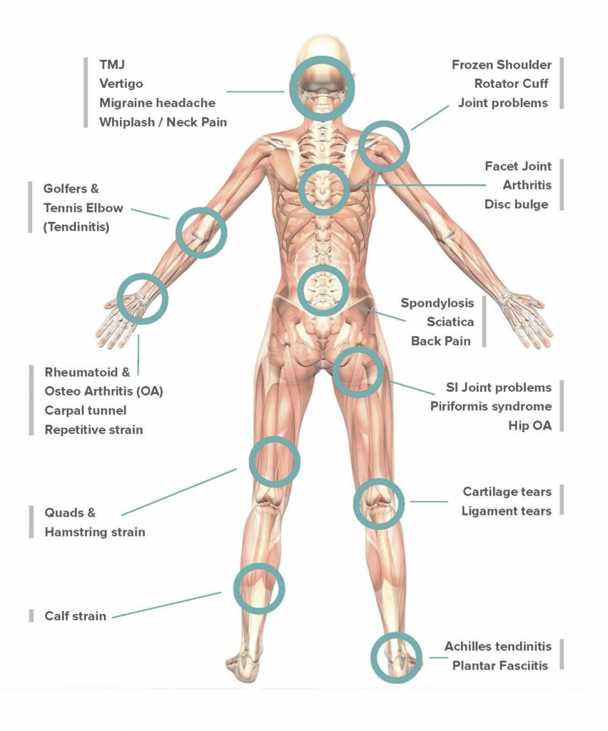 pain-relief-treatments