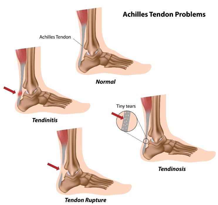achillies-tendon-problems
