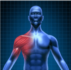 shoulder-inflamation